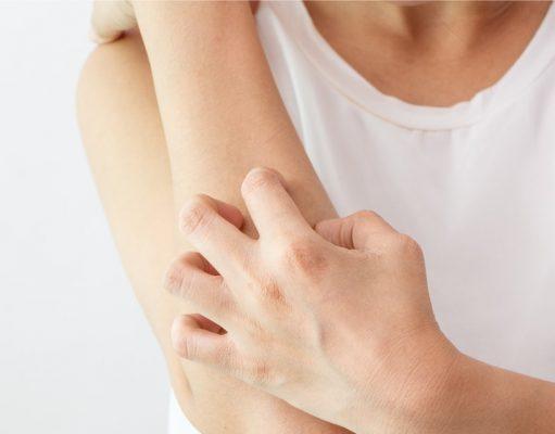 dermatilomania