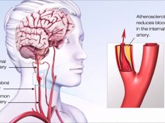 accident vascular cerebral