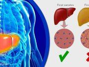 ficat gras cauze tratament